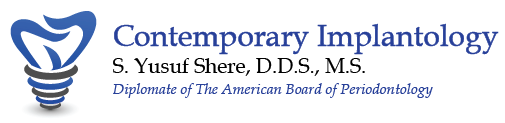 Contemporary Implant - Dr. Yusuf Shere - Houston, TX